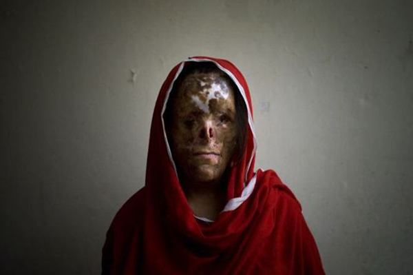 Девушка без лица с ужасными ранами